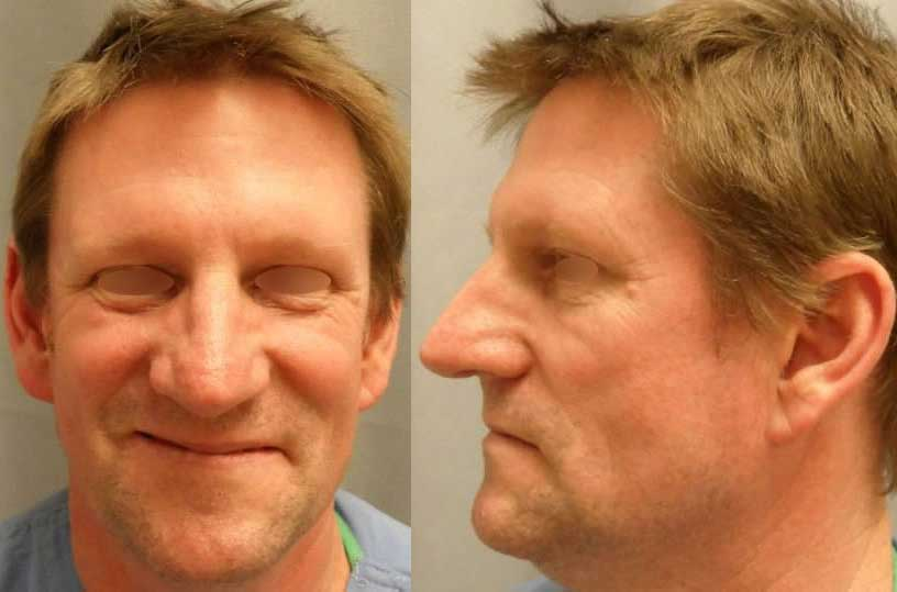 crooked-nose-after - Sunny Park Facial Plastic Surgery